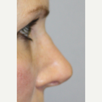 35-44 year old woman treated with Revision Rhinoplasty before 2984631