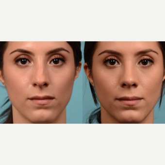 25-34 year old woman treated with Rhinoplasty before 3611383
