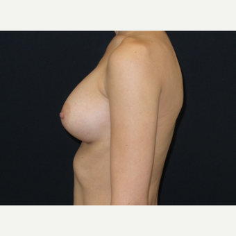 25-34 year old woman treated with Breast Implants after 3650898