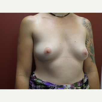 35-44 year old woman treated with Breast Augmentation before 3035192
