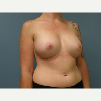 35-44 year old woman treated with Breast Augmentation after 3035192