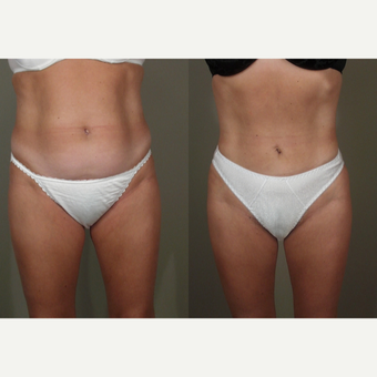 25-34 year old woman treated with Liposuction before 3659129