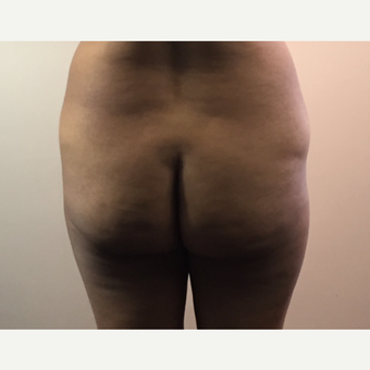 45-54 year old woman treated with Brazilian Butt Lift before 3141367