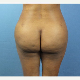 45-54 year old woman treated with Brazilian Butt Lift after 3141367