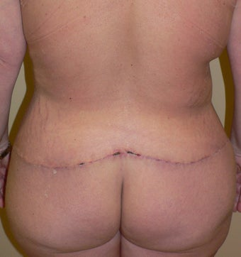 46 year old woman has Belt Lipectomy 984181