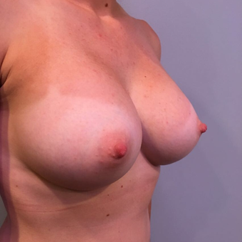 25-34 year old woman treated with Breast Augmentation after 3850519