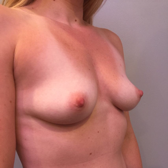 25-34 year old woman treated with Breast Augmentation before 3850519