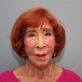 83 year old spunky woman treated with a lower facelift after 3544511
