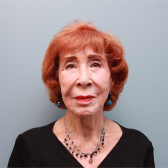 83 year old spunky woman treated with a lower facelift before 3544511