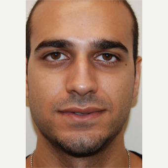 18-24 year old man treated with Rhinoplasty before 3143587