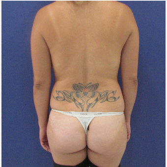 25-34 year old woman treated with Brazilian Butt Lift before 3663889