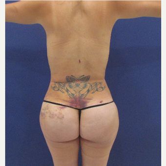 25-34 year old woman treated with Brazilian Butt Lift after 3663889