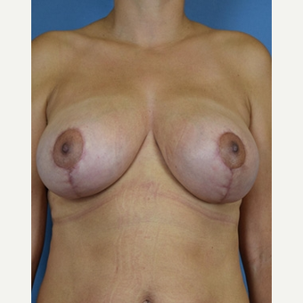 45-54 year old woman treated with Breast Reduction after 3630507