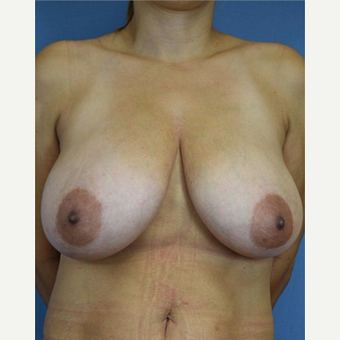 45-54 year old woman treated with Breast Reduction before 3630507