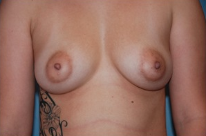 Areola Reduction  before 1409179