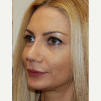 35-44 year old woman treated with Rhinoplasty after 3388022