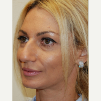 35-44 year old woman treated with Rhinoplasty before 3388022