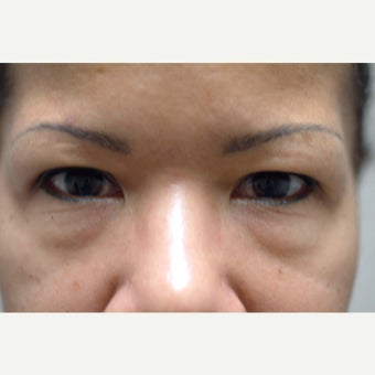 44 year old woman treated with Eyelid Surgery before 2269774