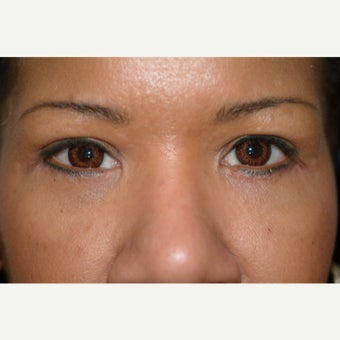 44 year old woman treated with Eyelid Surgery after 2269774
