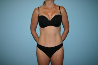 Tummy Tuck Photo  after 1143096
