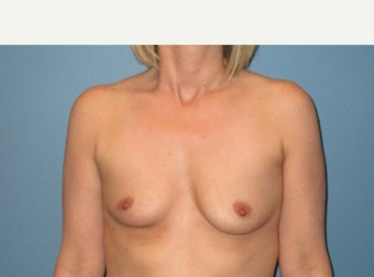 25-34 year old woman treated with Breast Implants before 3724514