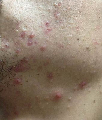 Accutane before 975886