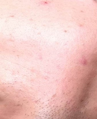 Accutane after 975886