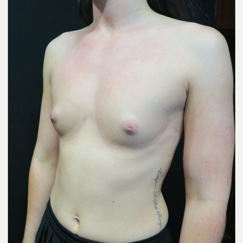 18-24 year old woman treated with Breast Augmentation before 3568593