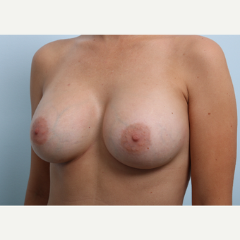Breast Augmentation after 3459876