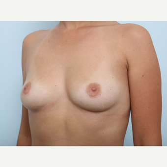 Breast Augmentation before 3459876