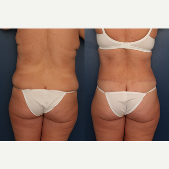 35-44 year old woman treated with Tummy Tuck after 3699222