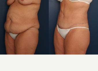 35-44 year old woman treated with Tummy Tuck before 3699222
