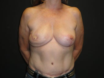 Flap-based breast reconstruction - DIEP after 867419