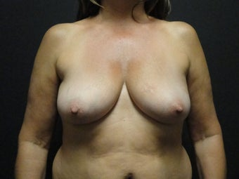 Flap-based breast reconstruction - DIEP before 867419