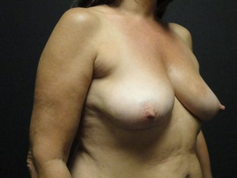 Flap-based breast reconstruction - DIEP 867419
