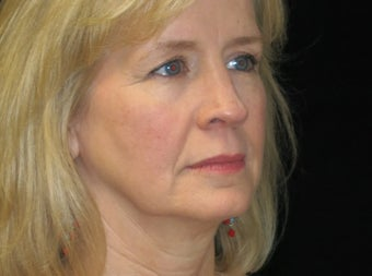 45-54 year old woman treated with Facelift, quad blepharoplasty 2509180