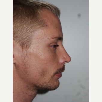Young man treated with Rhinoplasty and Chin Implant Surgery after 3001811