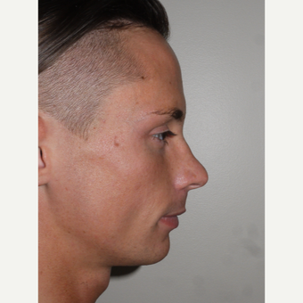 Young man treated with Rhinoplasty and Chin Implant Surgery before 3001811