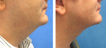 Male Treated for Chin Liposuction