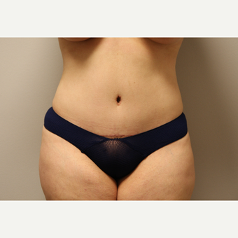 35-44 year old woman treated with Tummy Tuck after 3651902