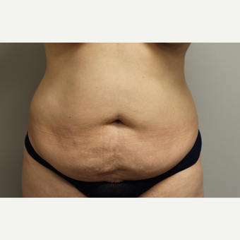 35-44 year old woman treated with Tummy Tuck before 3651902