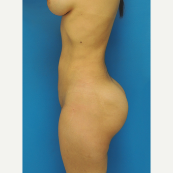 25-34 year old woman treated with Brazilian Butt Lift after 3107892