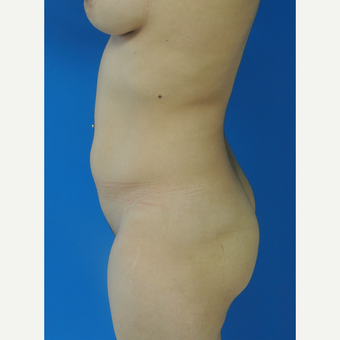 25-34 year old woman treated with Brazilian Butt Lift before 3107892