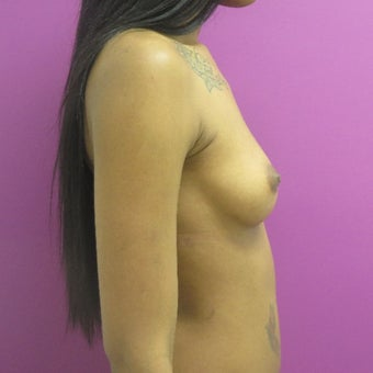 18-24 year old woman treated with Breast Augmentation 1566619