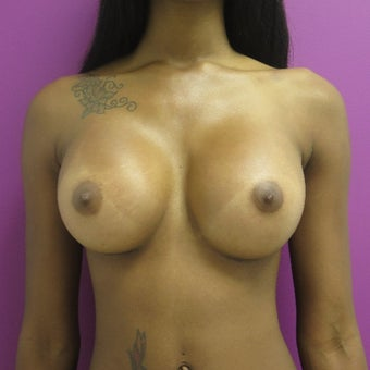 18-24 year old woman treated with Breast Augmentation after 1566619