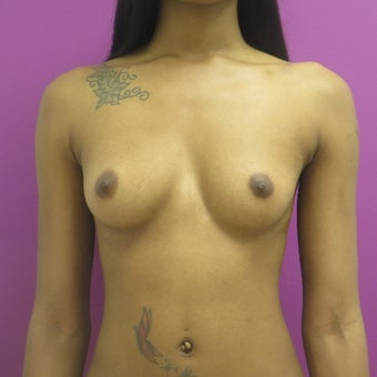 18-24 year old woman treated with Breast Augmentation before 1566619
