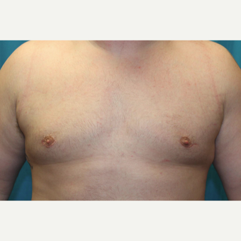 25-34 year old man treated with Male Breast Reduction after 3129072