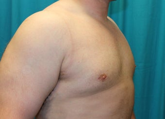 25-34 year old man treated with Male Breast Reduction 3129072