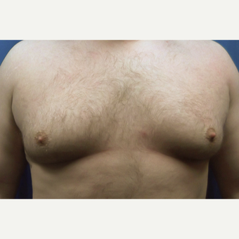 25-34 year old man treated with Male Breast Reduction before 3129072