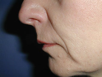 Radiesse for Nasolabial Folds before 100935
